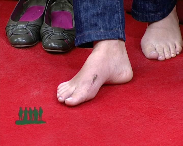 picior operat monica